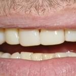 6 composiet facings en spleetje dichtmaken voortanden na behandeling