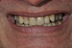 Knarsende patient na tandheelkundige behandeling