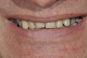 Knarsende patient voor tandheelkundige behandeling