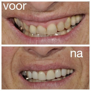 Mooie_tanden
